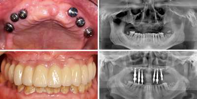 昆明美奥口腔医院半口种植牙案例