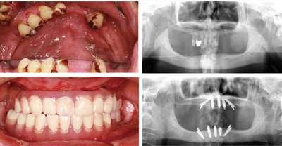 昆明美奥口腔医院全口种植牙案例