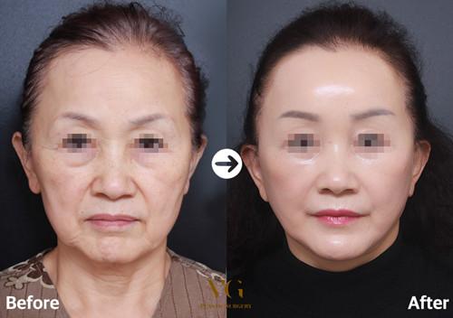 韩国VG百利酷医院拉皮手术案例对比