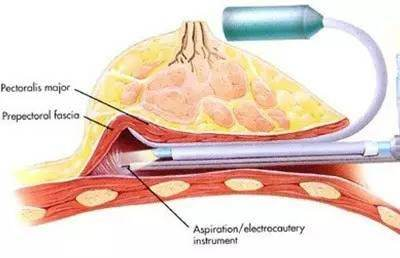 内窥镜隆胸技术