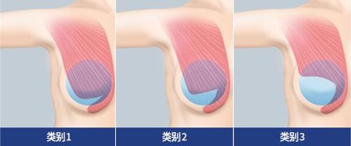 韩国麦恩整形胸部提升术