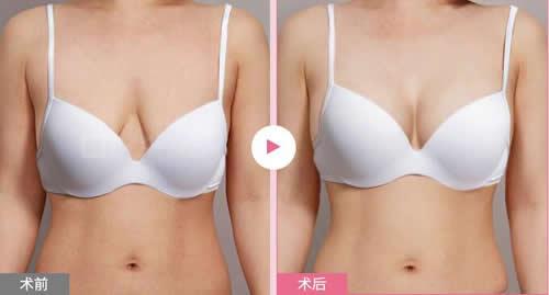 韩国麦恩整形外科胸部提升案例展示