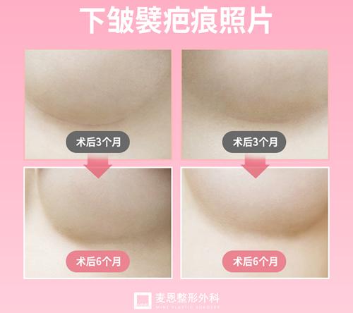 韩国麦恩整形胸部提升特点展示