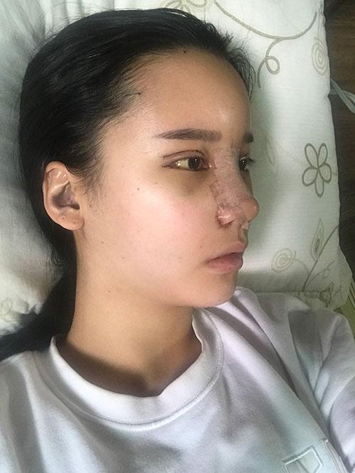 韩国歌柔飞医院隆鼻照片