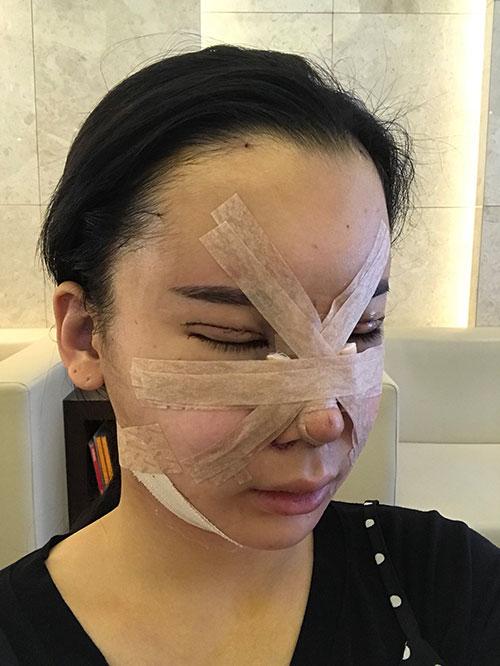 韩国歌柔飞医院手术恢复照