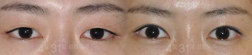 双眼皮术手术对比案例