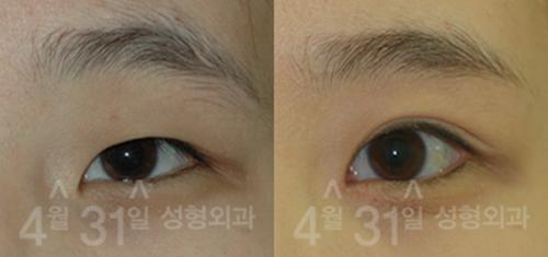 上眼睑下垂矫正手术案例