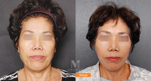韩国迪美THE-M整形医院面部提拉手术案例