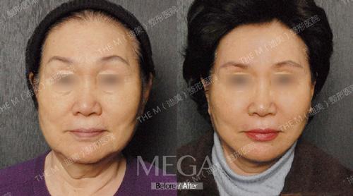 韩国迪美THE-M整形医院面部提拉手术前后对比