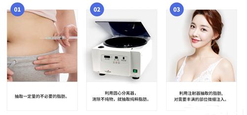 韩国迪美自体脂肪填充手术流程