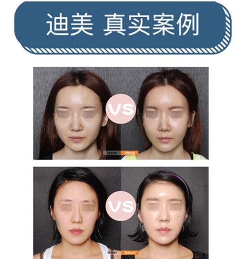 韩国迪美面部脂肪填充真实案例