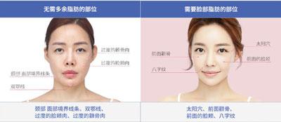 韩国迪美自体脂肪面部填充部位