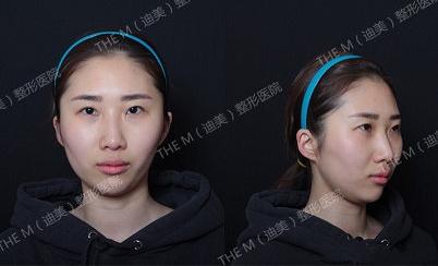 韩国迪美整形眼鼻综合术前照