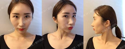韩国迪美整形眼鼻综术后两周照