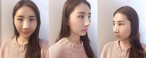 韩国迪美整形眼鼻综术后当天照