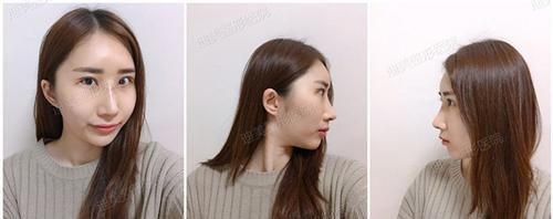韩国迪美整形眼鼻综术后十天照