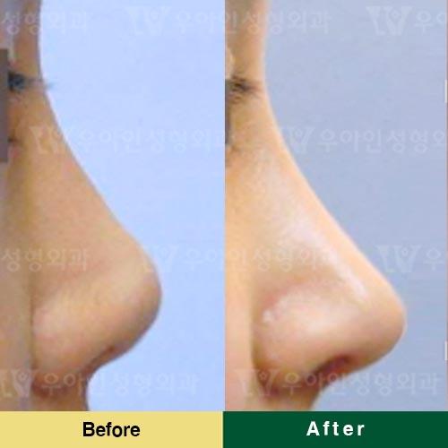 韩国优雅人整形外科鼻修复案例
