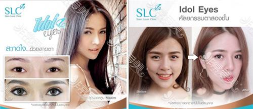曼谷slc整形医院眼整形案例