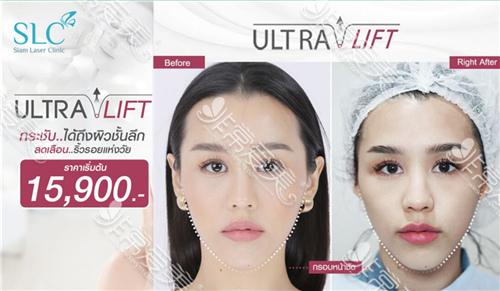 曼谷slc整形医院皮肤管理贵吗