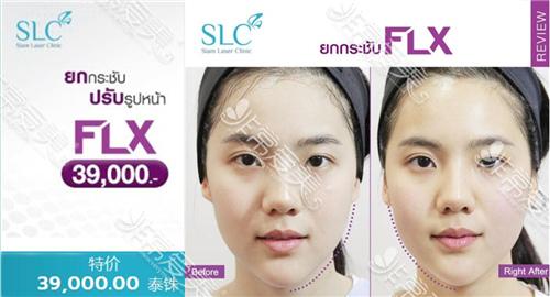 泰国做热玛吉大概多少钱