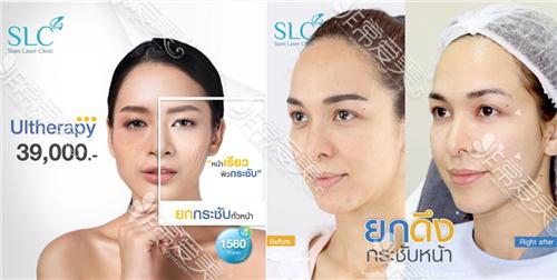 泰国slc整形医院皮肤管理效果及价位