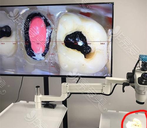 口腔显微镜放大牙齿内部结构