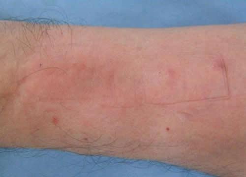 自体真皮再生术试验效果
