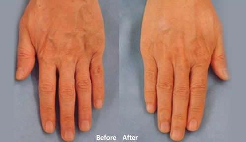 自体真皮再生术改善手部皱纹案例