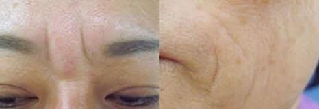 自体真皮再生术改善皱纹展示