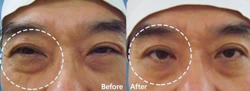 自体真皮再生术改善眼部皱纹案例