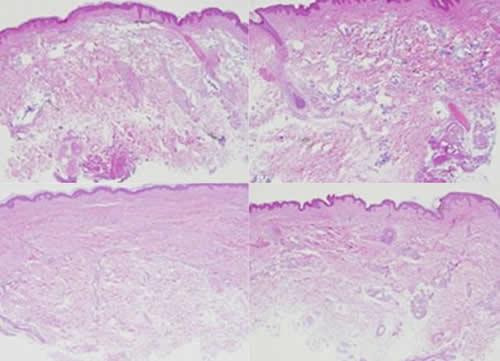 自体真皮再生术改善原理分析