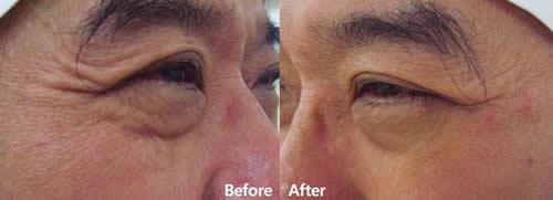 自体真皮再生术改善眼部细纹案例