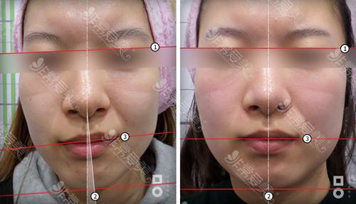 韩国美尔韩面部不对称原因、矫正方法及真人效果图分享!