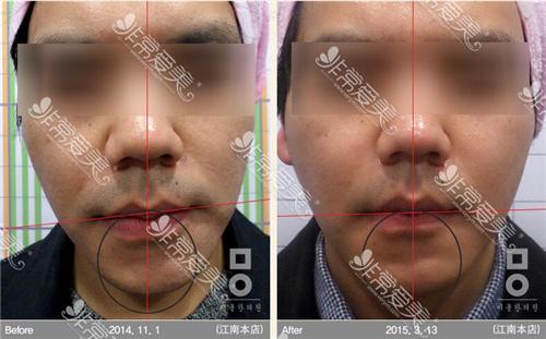 面部不对称什么手术可以改变