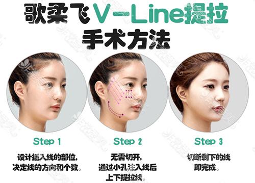 韩国歌柔飞埋线提升方法是示意图