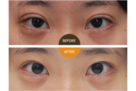 双眼皮肉条好修复吗?韩国来丽医院无痕修复案例我宣了!