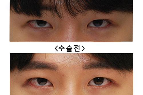 韩国来丽整形医院双眼皮变单眼皮反馈图