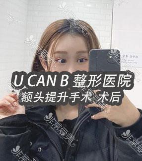 韩国Ucanb医院额头提升效果
