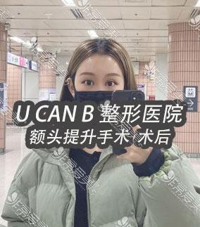 韩国Ucanb医院案例照片