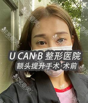 韩国Ucanb额头提升案例照片