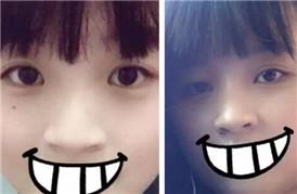 韩式三点双眼皮+开眼角=忽闪忽闪大眼睛