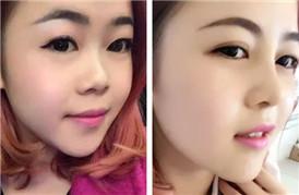 从美女到丑女,原来只有一个鼻梁的差距