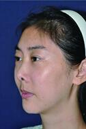 女孩7次隆?鼻变萎缩鼻 4月31日?成功修复过程