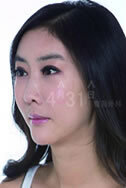 韩国4月31日整形医院-女孩7次隆鼻变萎缩鼻 4月31日成功修复过程