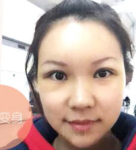 韩国4月31日整形医院-韩国4月31日整形外科眼鼻整形+脂肪填充 让我重拾自信