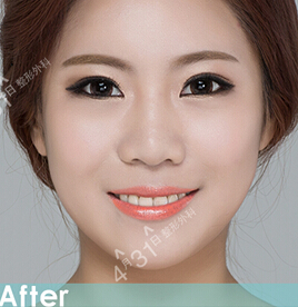 韩国4月31日整形医院-眼部整形+颧骨缩小+V-Line手术 重返年轻容颜