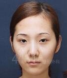韩国4月31日整形医院-韩国4月31日整形外科双胞胎姐妹变脸整形故事