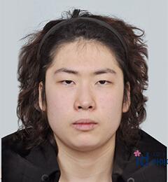 朴相薰ID医院-韩国ID医院男士地包天凸嘴整形前后对比照片
