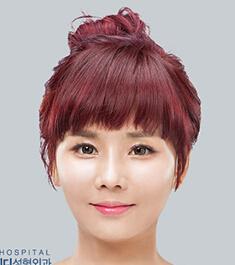 """韩国ID医院《let美人》篇:""""假小子""""变身性感美少女"""
