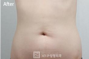 腹部吸脂对比图
